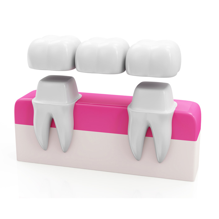 Seymour Dental Crowns