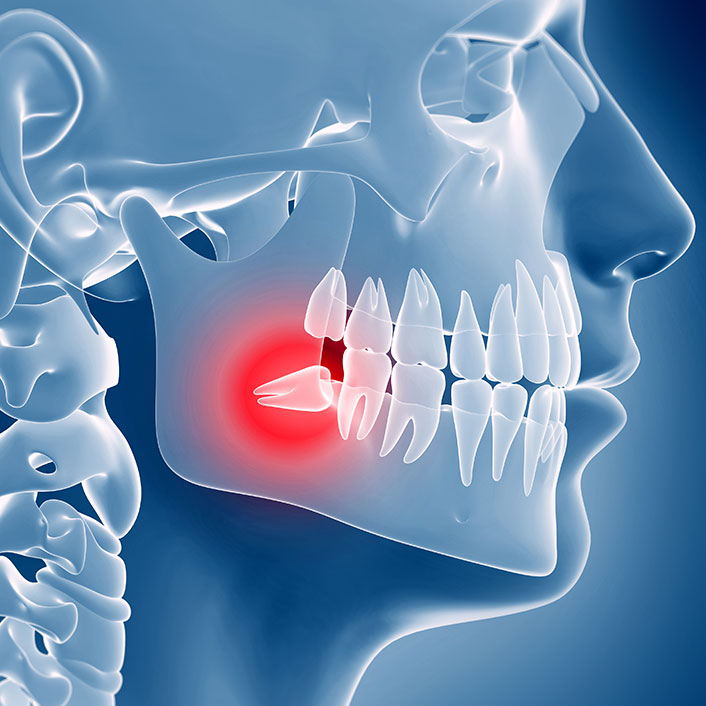 TMJ Treatments - Detail